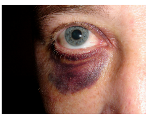 What to Do If You Get a Black Eye