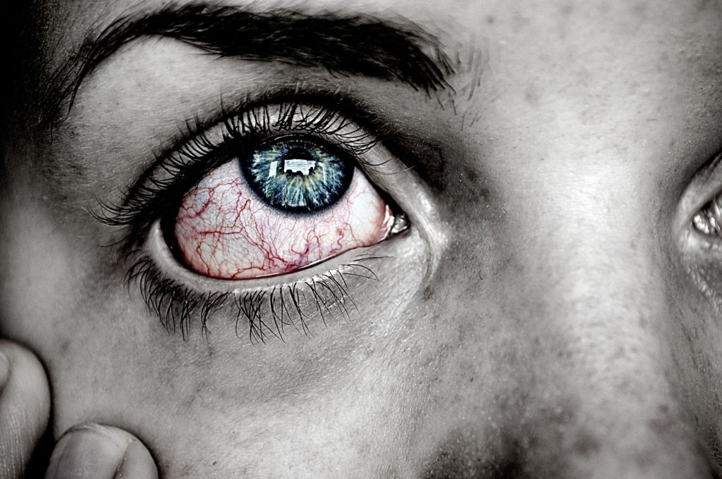 How To Tell If You Have An Eye Infection