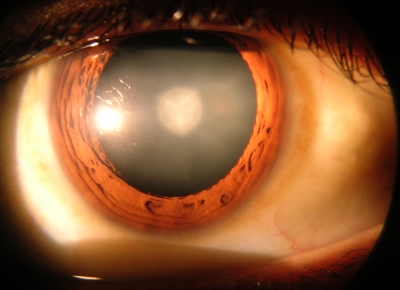 cataract surgery macular degeneration